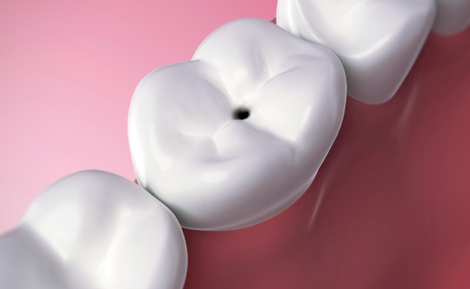dca-blog_article-16_how-cavities-and-fillings-work