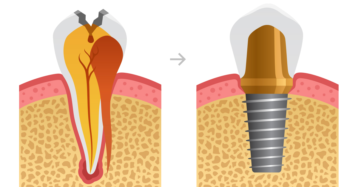 dca-blog_article-49_tooth-implant-types_1200x630