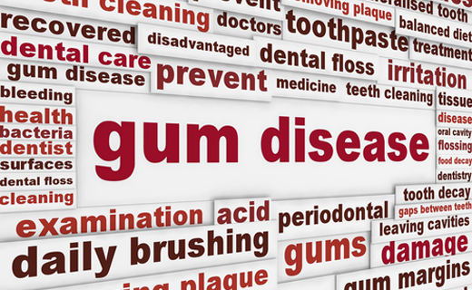 dca-blog_gum-disease